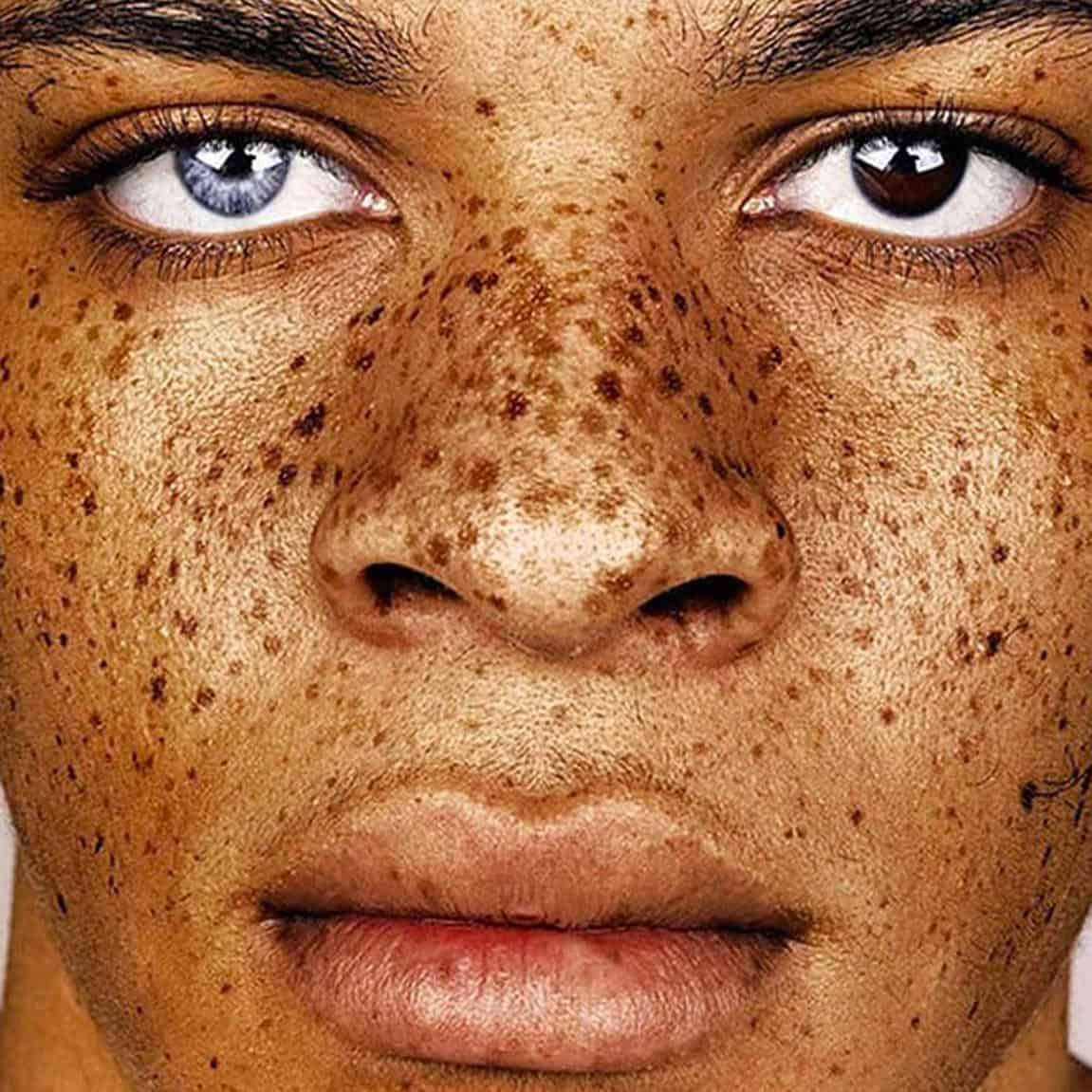 Beauty of freckles
